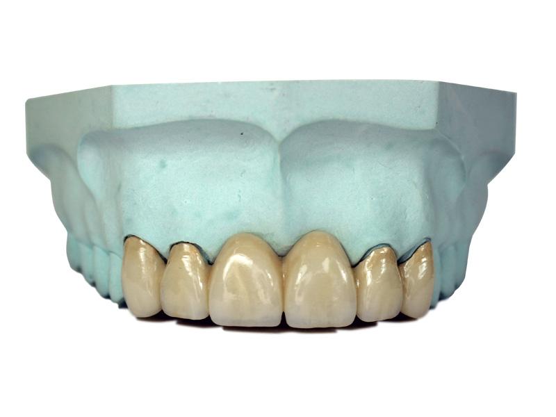 Crown & Bridge / Porcelain